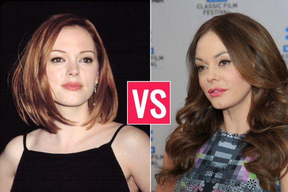 Celebrities With Plastic Surgery: Better Before Or After?