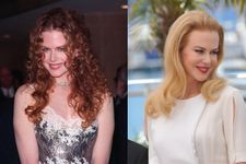 17 Celebs Who Looked Better Before Plastic Surgery