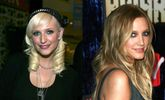 7 Celebrities Who Look Better After Plastic Surgery
