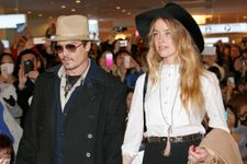 New Photos Of Amber Heard's Injuries Are Released
