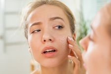 The 5 Best Exfoliators For Dry Skin